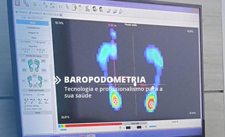 VivaSenDorNosPés - Produto -  Baropodômetro
